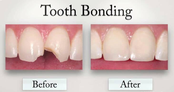 Bonding Yöntemi ile kırık diş tedavisi