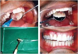 Cam fiber diş yapımı