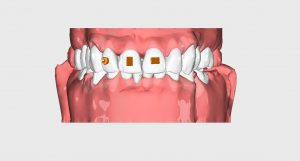 clearfix ile ortodonti şefffaf plak