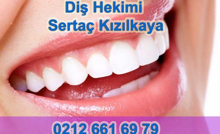 Laminate diş