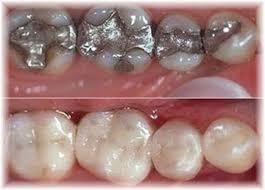 Estetik diş dolgu fiyatı