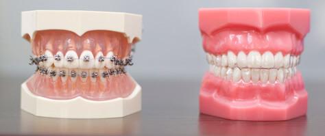 ortodonti istanbul