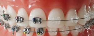 Metal ve seramik diş teli