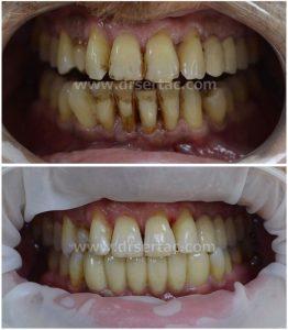 Diş taşı temizliği ile sağlıklı diş ve diş etleri