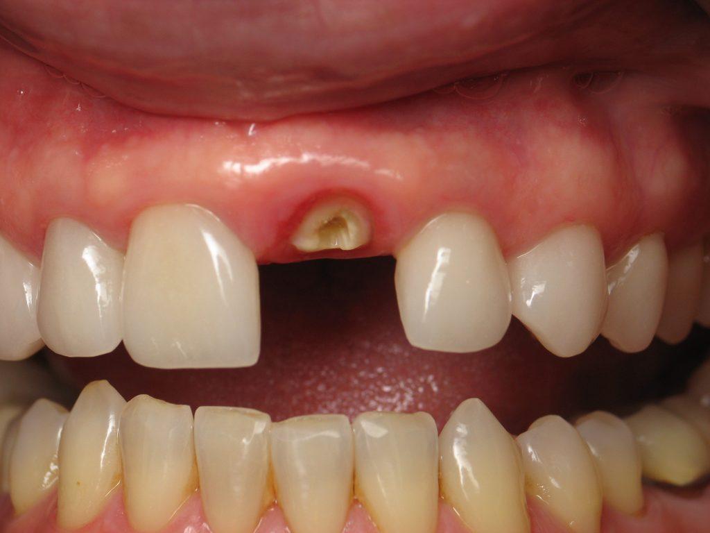 Ön diş implant
