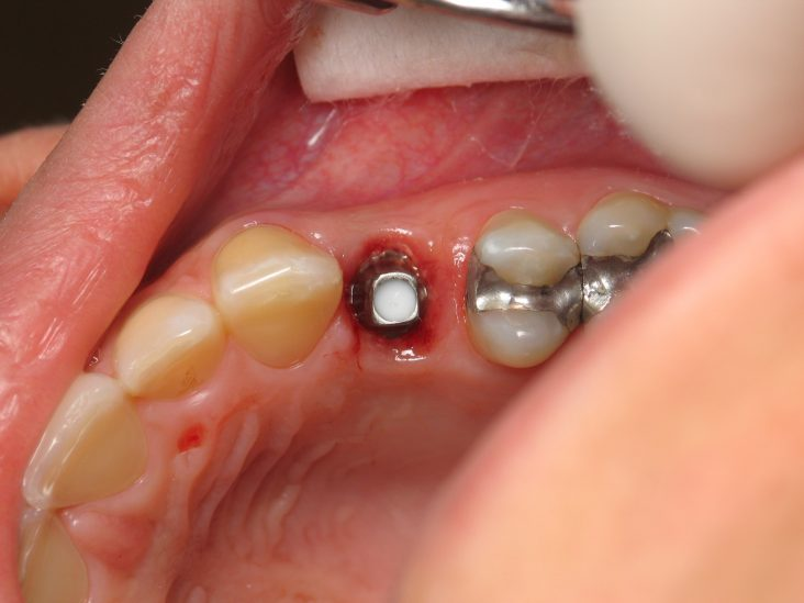 Ön diş implant uygulaması