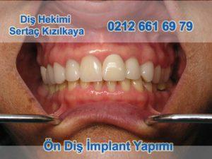 Ön diş implant yapımı