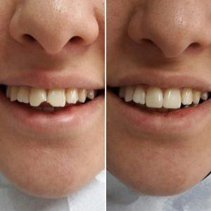 aralıklı veya kırık dişlerin kapatılması