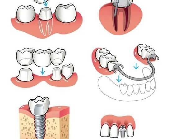 İmplant Üzeri Diş Uygulamaları