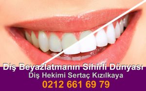 Diş Beyazlatma fiyatı