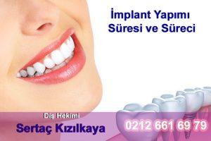 implant yapımı