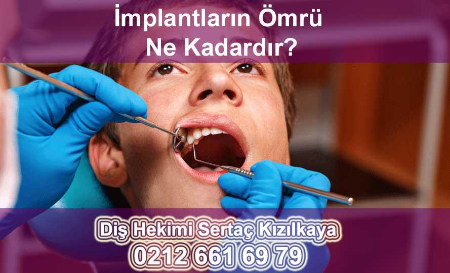 İMPLANT DİŞ ÖMRÜ
