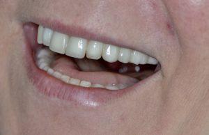 Estetik Diş Tedavisi