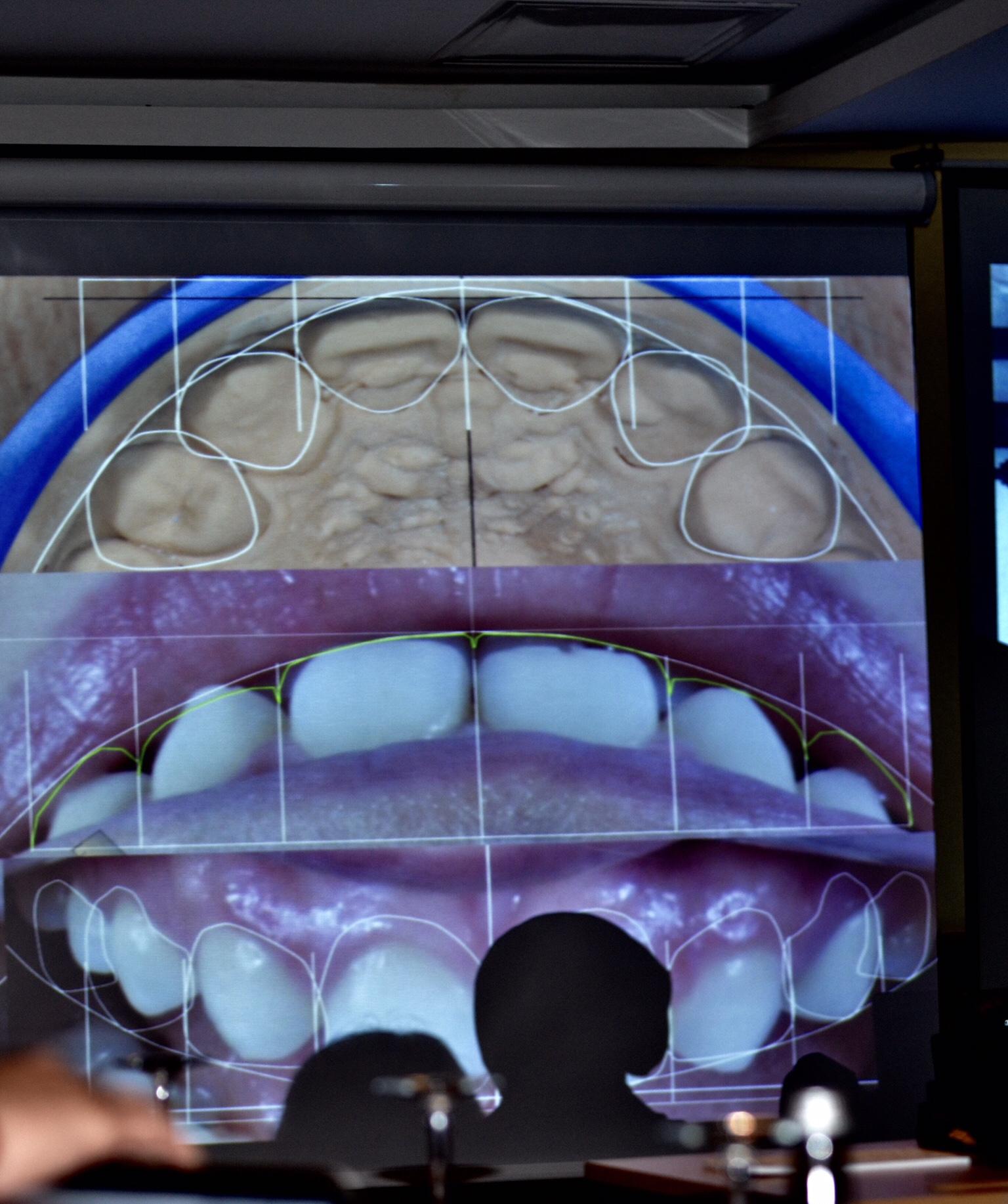 Cerec ile diş yapımı