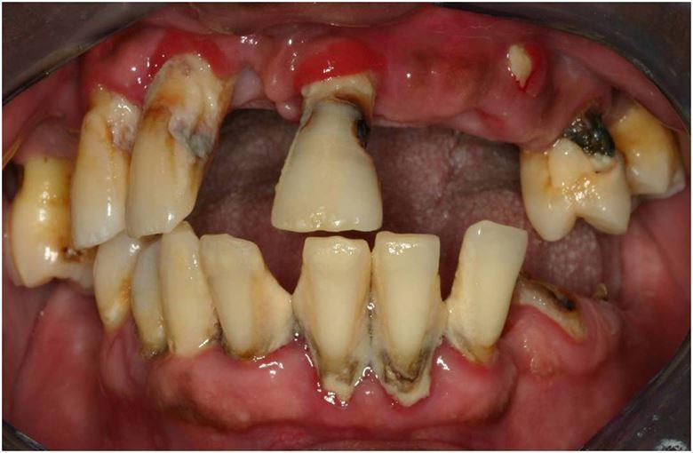 İlerlemiş diş eti hastalığı nedeni ile kaybedilmiş dişler