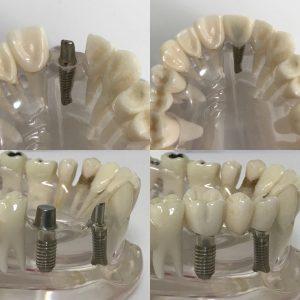 İmplant diş yapımı model üzerinde gösterilmiştir.