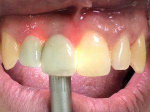 Metal porselen ve doğal diş