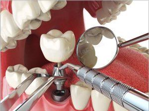 Sallanan Dişe İmplant