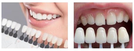Diş Rengi